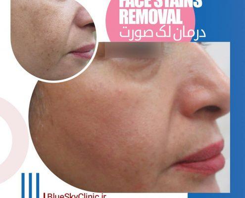 درمان لک صورت 2