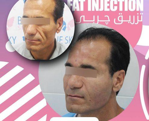 تزریق چربی 1