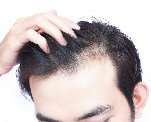 Hair transplantation in Karaj