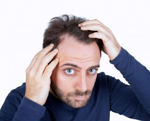 Hair transplantation in Karaj