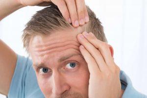روش های مختلف کاشت مو در کرج
