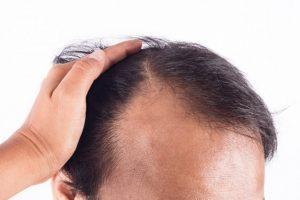 هزینه کاشت مو در کرج