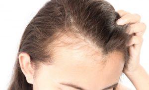 مرکز کاشت مو خوب در کرج