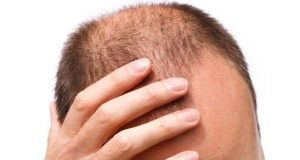 Cost of hair transplant in Karaj