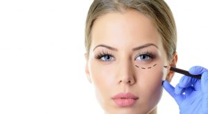 Eyelid Surgery in Karaj