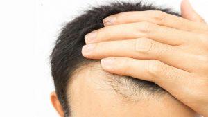 کلینیک تخصصی کاشت مو