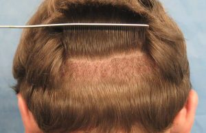 کلینیک کاشت مو خوب