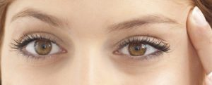 The best eyelid surgeon in Karaj
