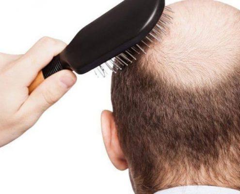 The best hair transplant doctor in Karaj