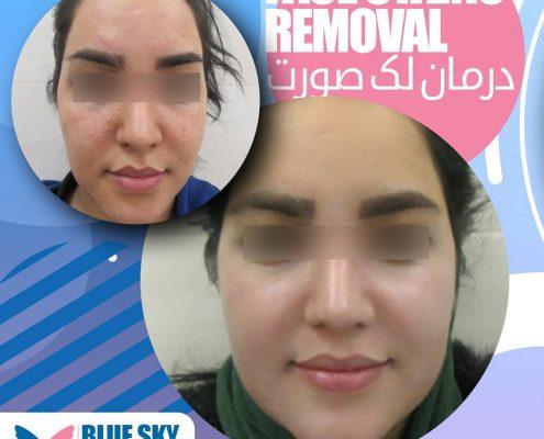 درمان لک صورت 1