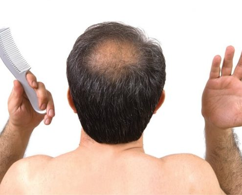کلینیک کاشت مو