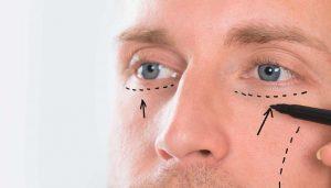 مزایای جراحی پلک