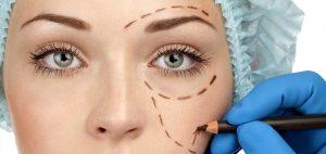 هزینه جراحی پلک