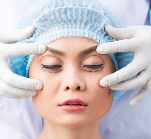 جراحی پلک