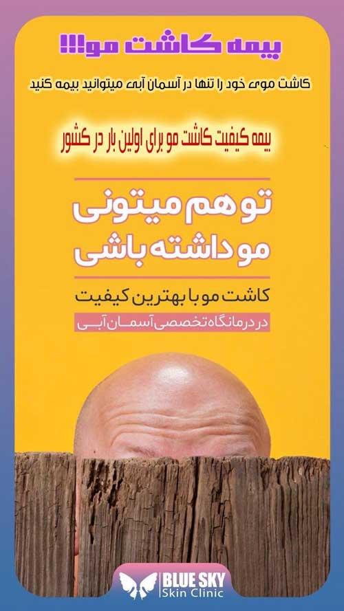 بیمه-کاشت-مو